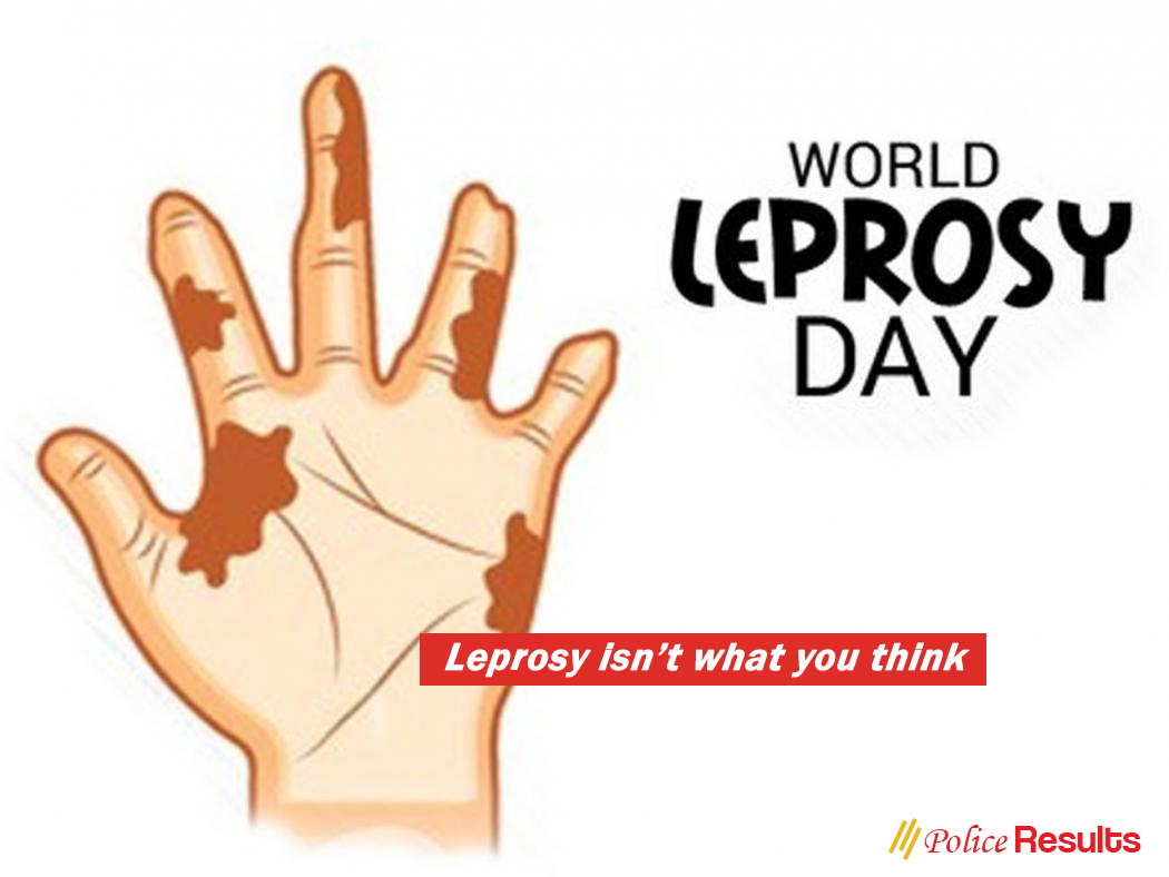 Symptoms of Leprosy