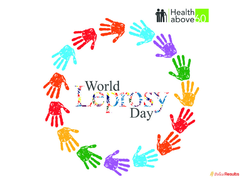 World Leprosy Day 2020 – World Leprosy Eradication Day 2020 Theme, Quotes, Slogans, Posters and Awareness Program